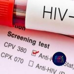 HIV. Did you get tested?